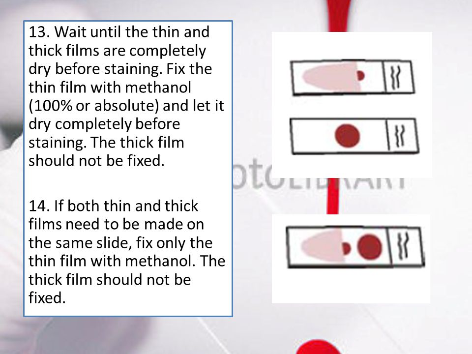 13. Wait until the thin and thick films are completely dry before staining. Fix the thin film with methanol (100% or absolute) and let it dry complete