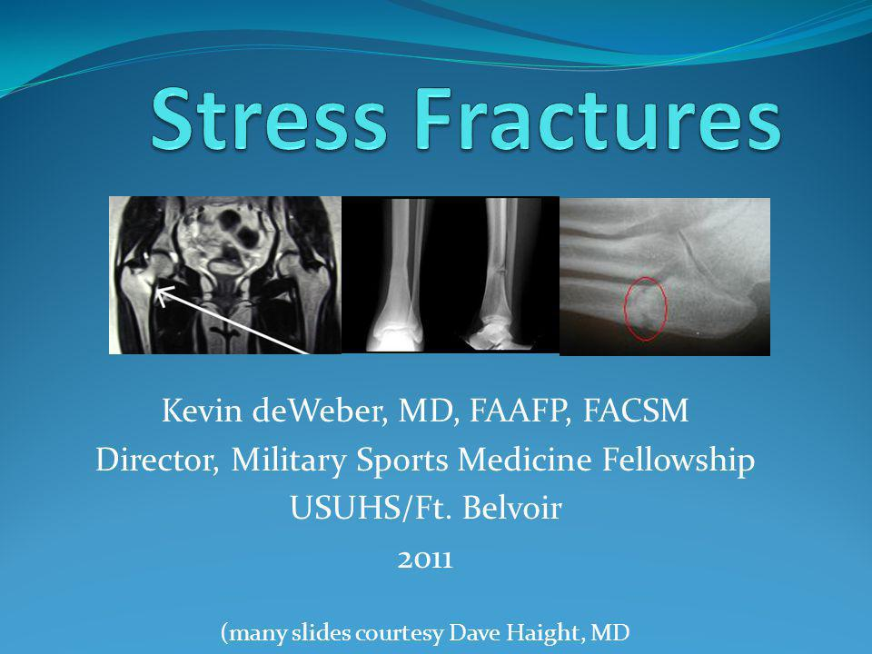 Kevin deWeber, MD, FAAFP, FACSM Director, Military Sports Medicine Fellowship USUHS/Ft. Belvoir 2011 (many slides courtesy Dave Haight, MD