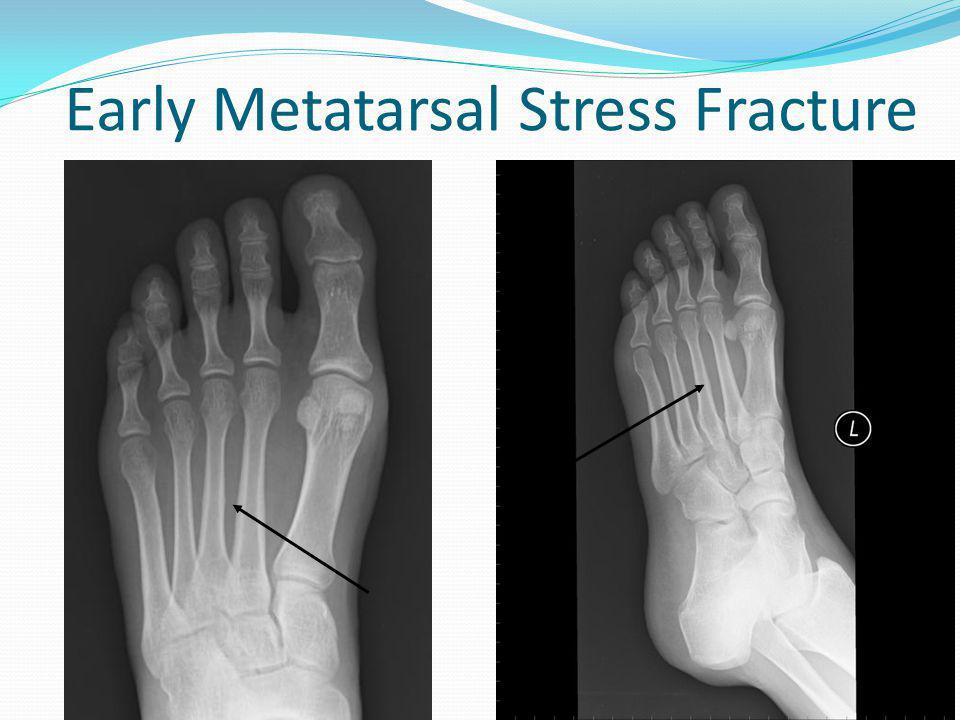 Early Metatarsal Stress Fracture