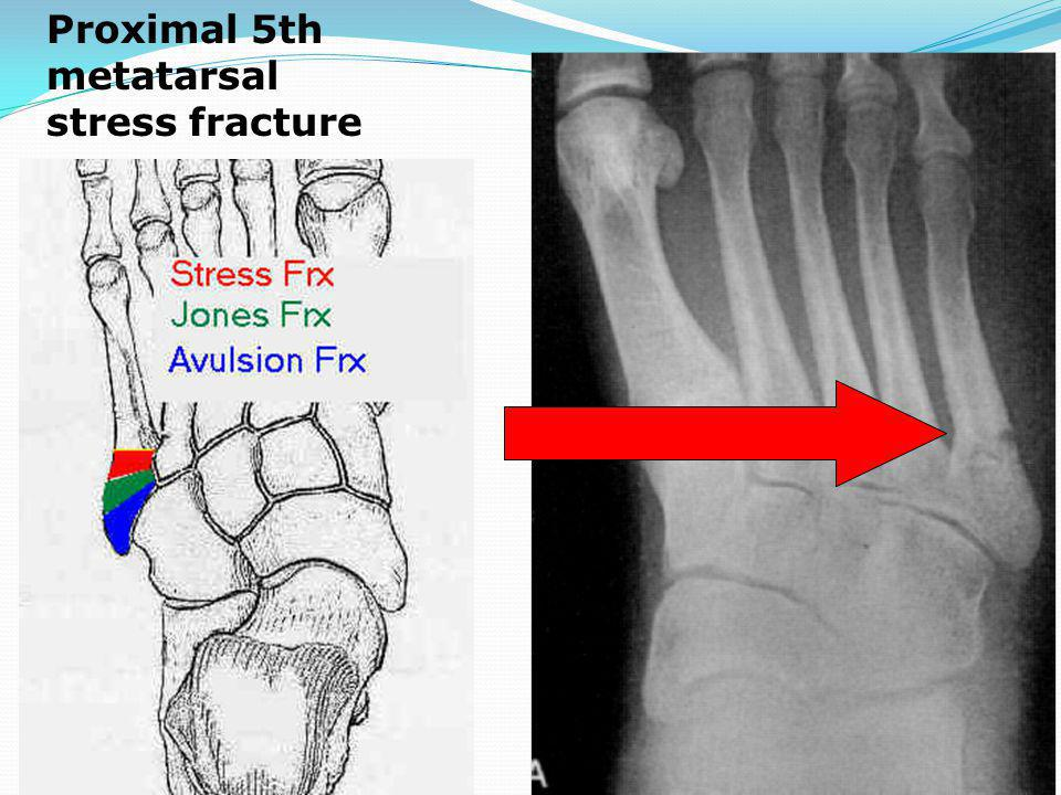 Proximal 5th metatarsal stress fracture