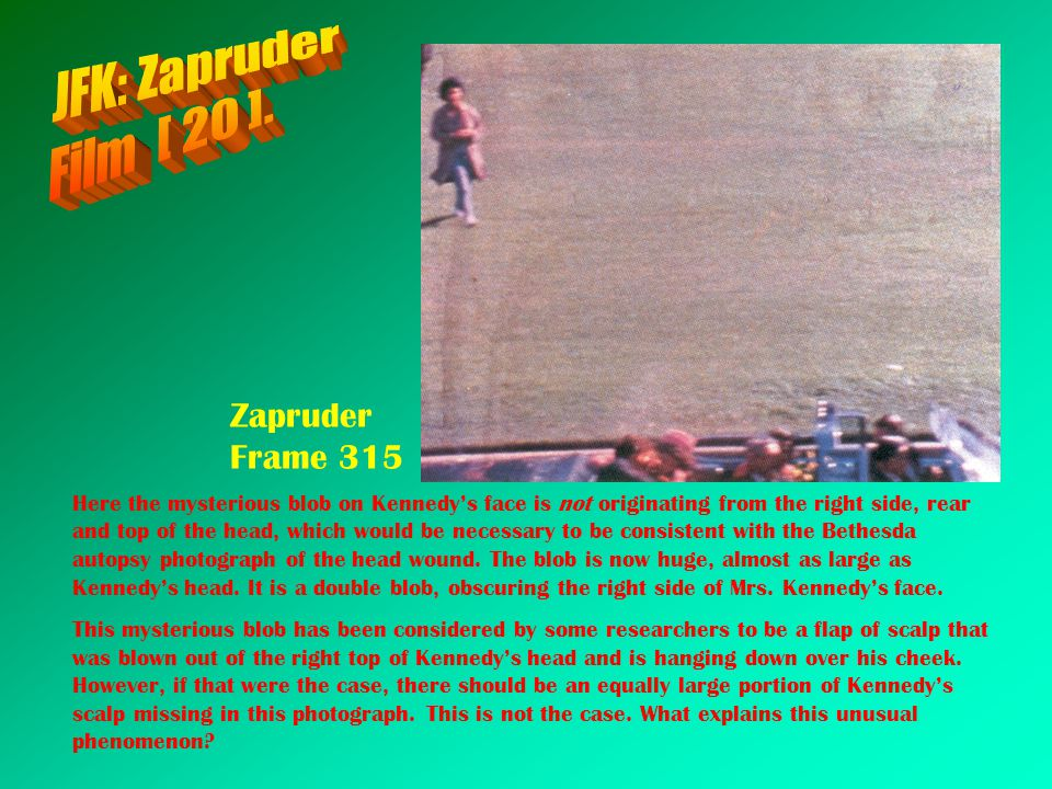 Zapruder Frame 315 Here the mysterious blob on Kennedys face is not originating from the right side, rear and top of the head, which would be necessar