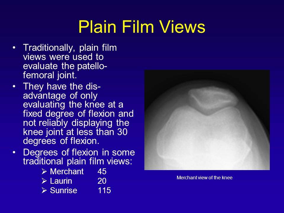 Plain Film Views Traditionally, plain film views were used to evaluate the patello- femoral joint.