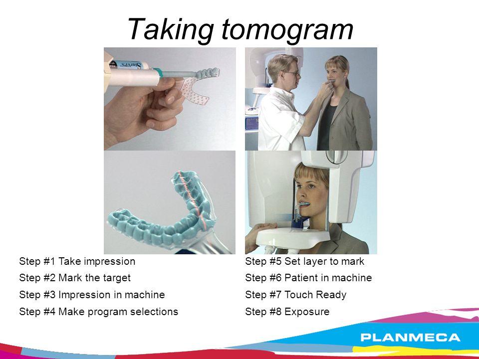 Taking tomogram Step #1 Take impression Step #2 Mark the target Step #3 Impression in machine Step #4 Make program selections Step #5 Set layer to mar