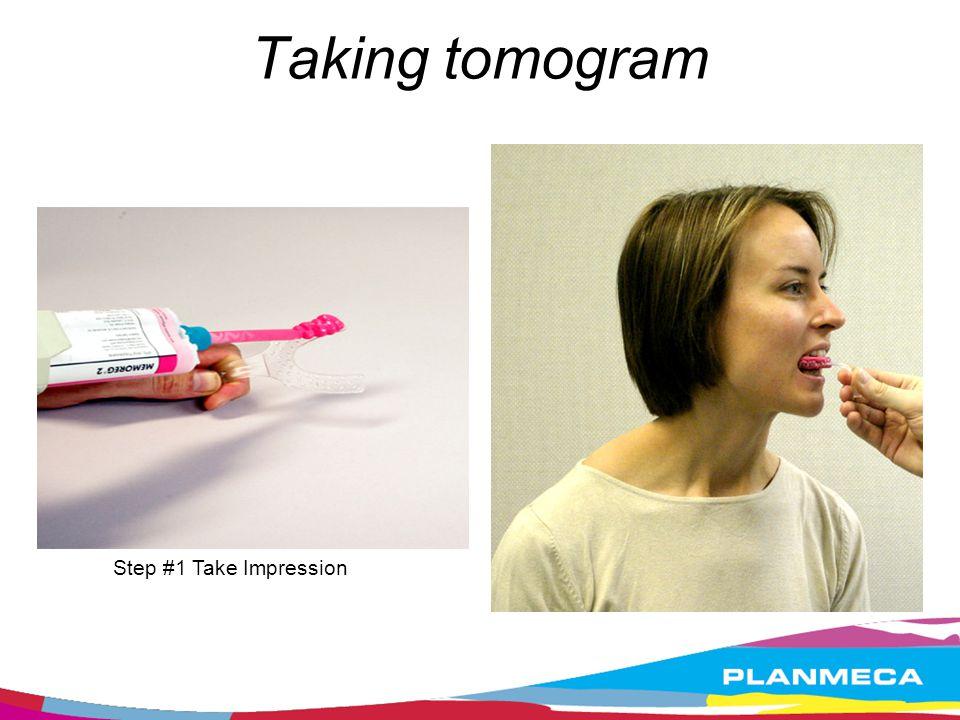 Taking tomogram Step #1 Take Impression