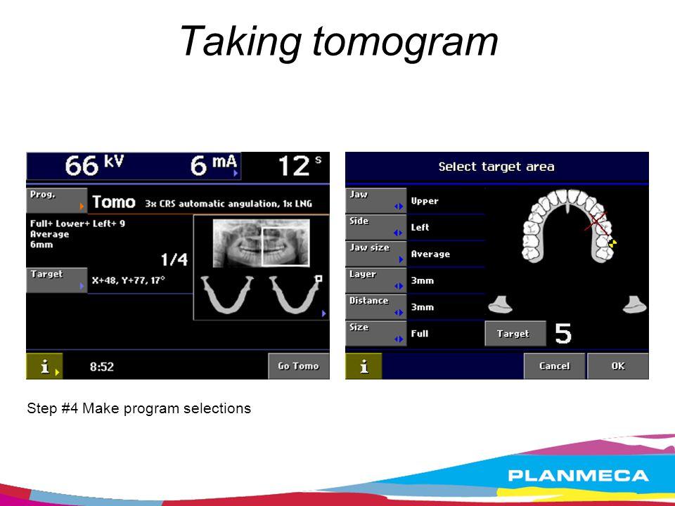 Taking tomogram Step #4 Make program selections