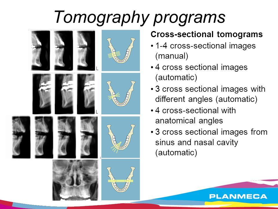 Cross-sectional tomograms 1-4 cross-sectional images (manual) 4 cross sectional images (automatic) 3 cross sectional images with different angles (aut