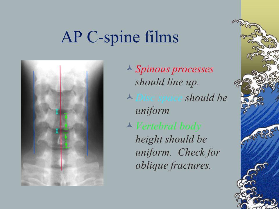 AP C-spine films Spinous processes should line up. Disc space should be uniform Vertebral body height should be uniform. Check for oblique fractures.