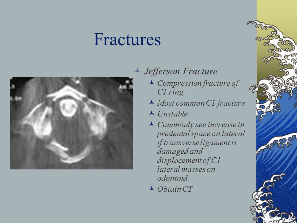 Fractures Jefferson Fracture Compression fracture of C1 ring Most common C1 fracture Unstable Commonly see increase in predental space on lateral if t