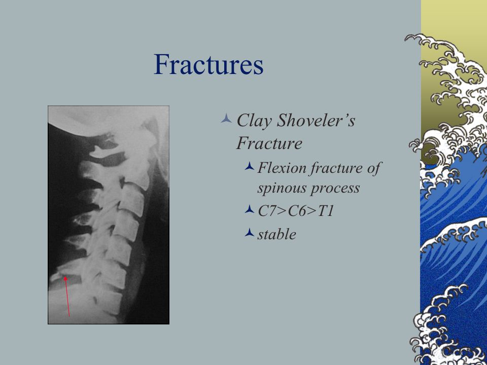 Fractures Clay Shovelers Fracture Flexion fracture of spinous process C7>C6>T1 stable
