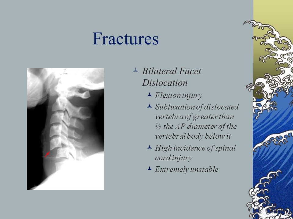 Fractures Bilateral Facet Dislocation Flexion injury Subluxation of dislocated vertebra of greater than ½ the AP diameter of the vertebral body below