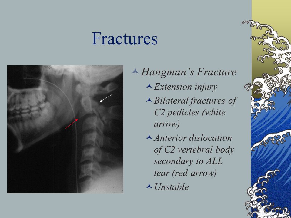 Fractures Hangmans Fracture Extension injury Bilateral fractures of C2 pedicles (white arrow) Anterior dislocation of C2 vertebral body secondary to A