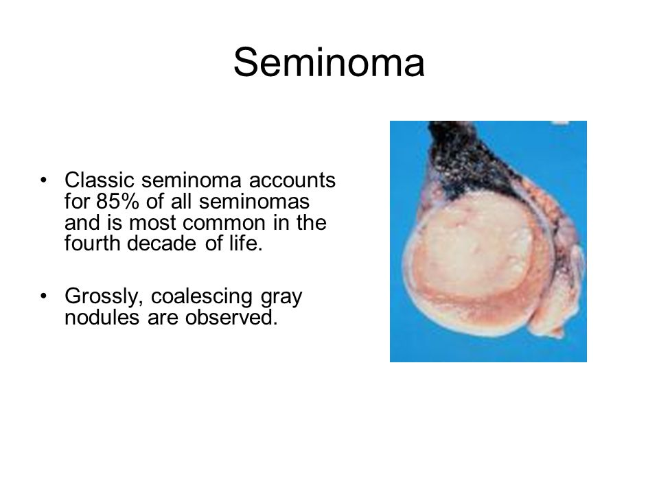 Seminoma Classic seminoma accounts for 85% of all seminomas and is most common in the fourth decade of life. Grossly, coalescing gray nodules are obse