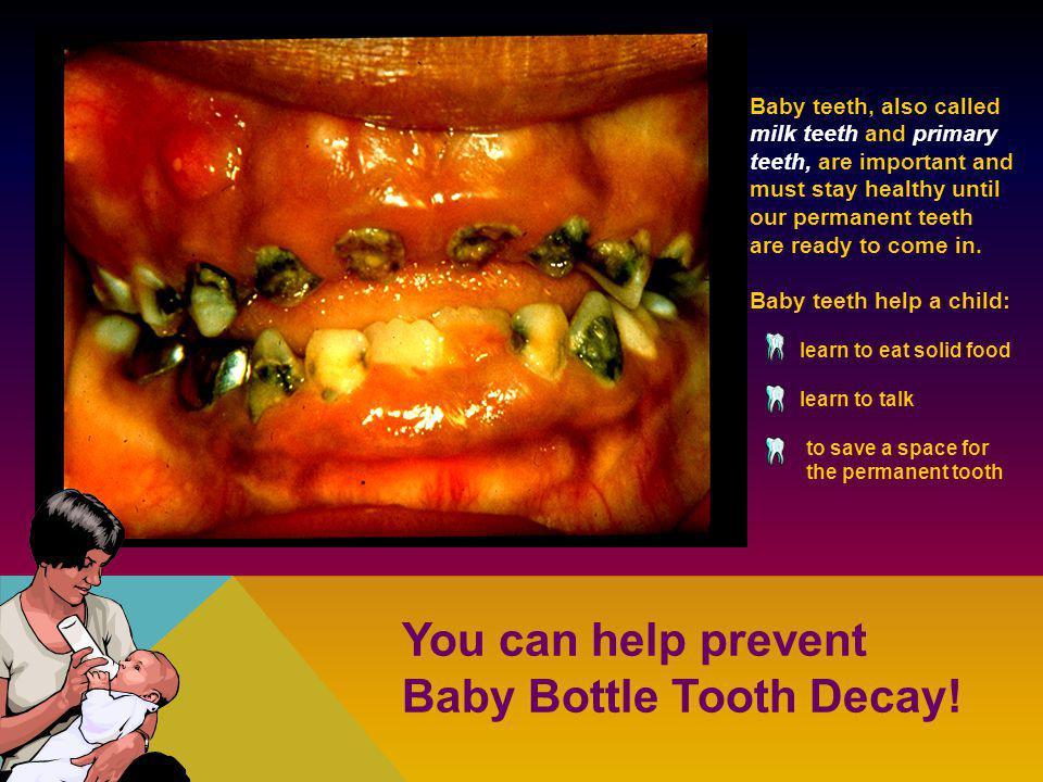Gingivitis Healthy teeth must have healthy gums.