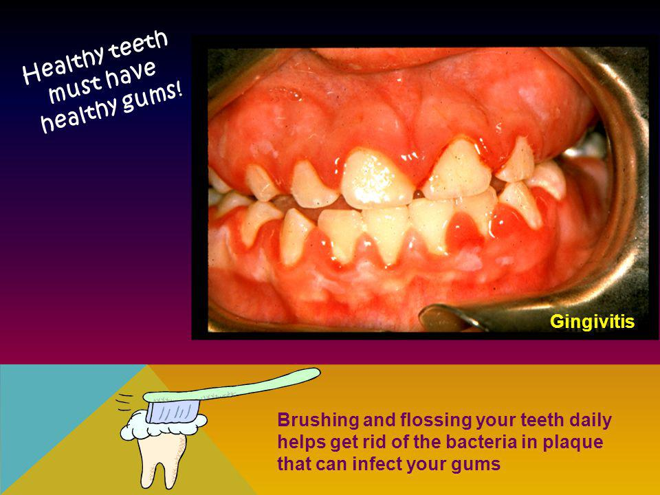 Gingivitis Healthy teeth must have healthy gums! Brushing and flossing your teeth daily helps get rid of the bacteria in plaque that can infect your g