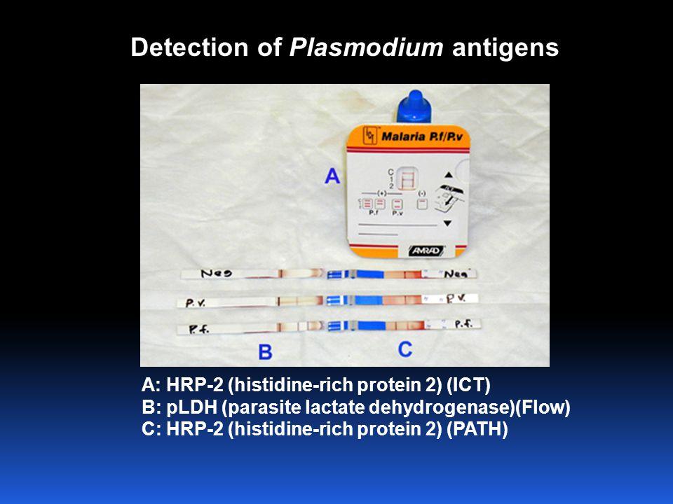 Detection of Plasmodium antigens A: HRP-2 (histidine-rich protein 2) (ICT) B: pLDH (parasite lactate dehydrogenase)(Flow) C: HRP-2 (histidine-rich pro