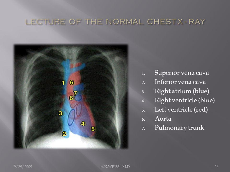 1. Superior vena cava 2. Inferior vena cava 3. Right atrium (blue) 4. Right ventricle (blue) 5. Left ventricle (red) 6. Aorta 7. Pulmonary trunk 9/29/