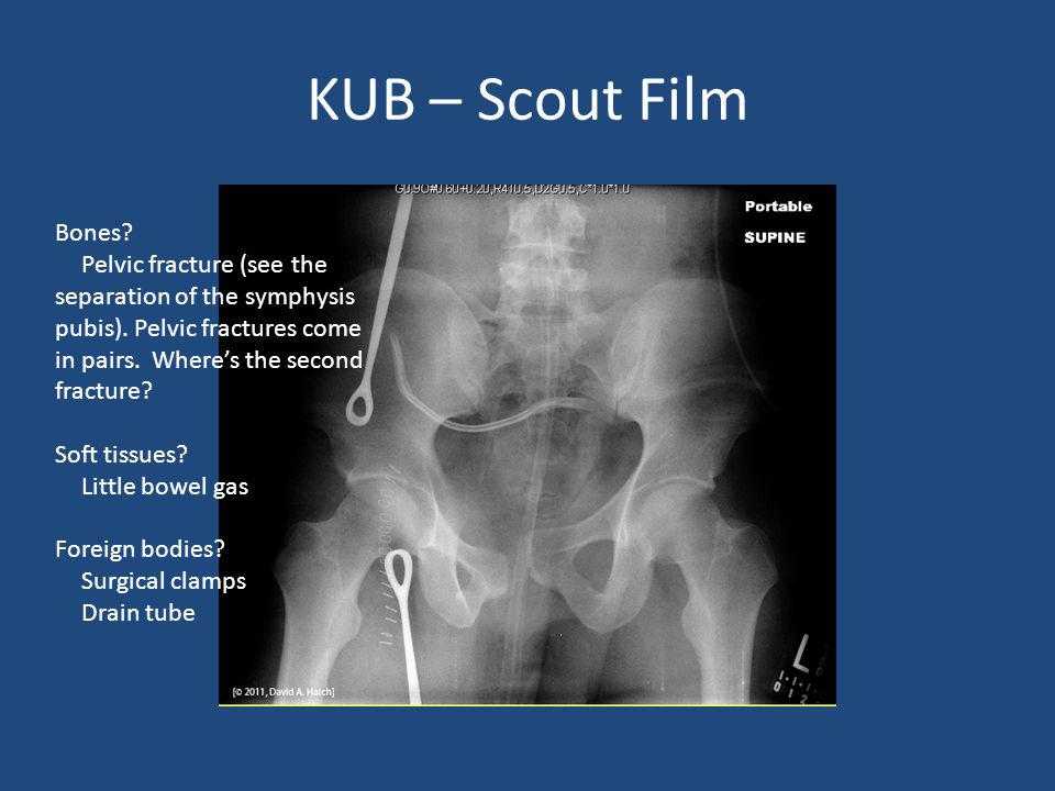 Bones? Pelvic fracture (see the separation of the symphysis pubis). Pelvic fractures come in pairs. Wheres the second fracture? Soft tissues? Little b
