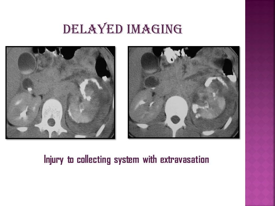 Injury to collecting system with extravasation Delayed imaging