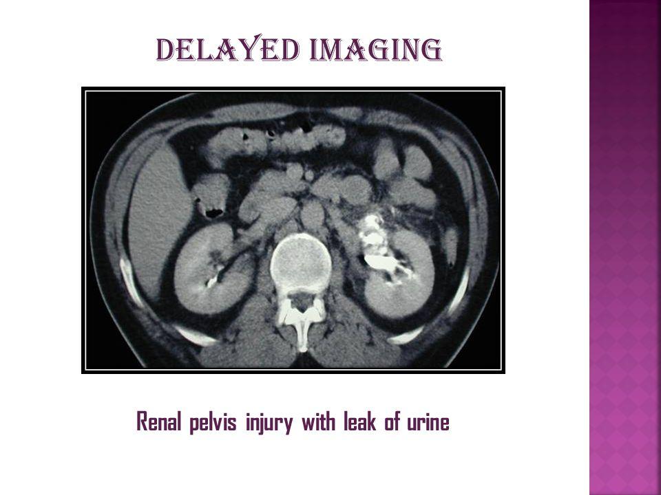 Renal pelvis injury with leak of urine Delayed imaging