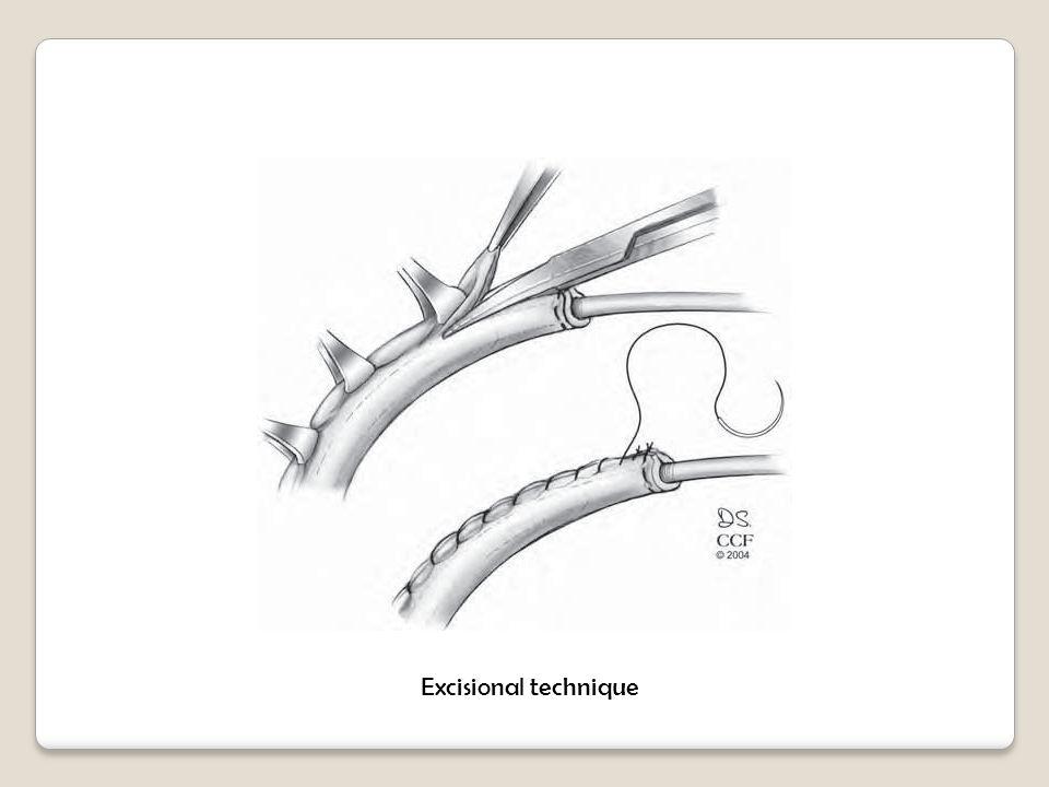 Excisional technique
