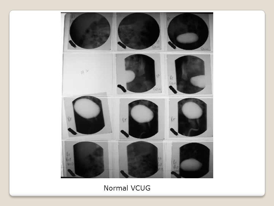 Normal VCUG