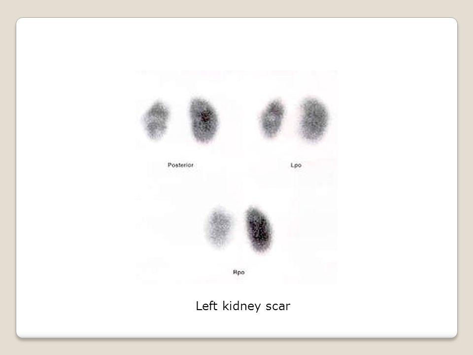 Left kidney scar