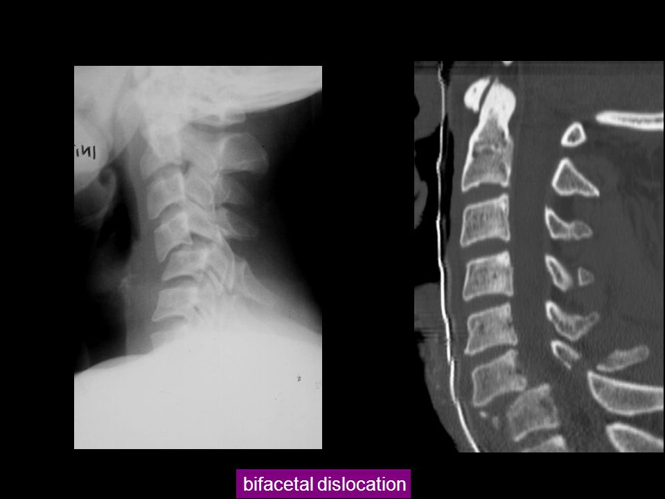 bifacetal dislocation