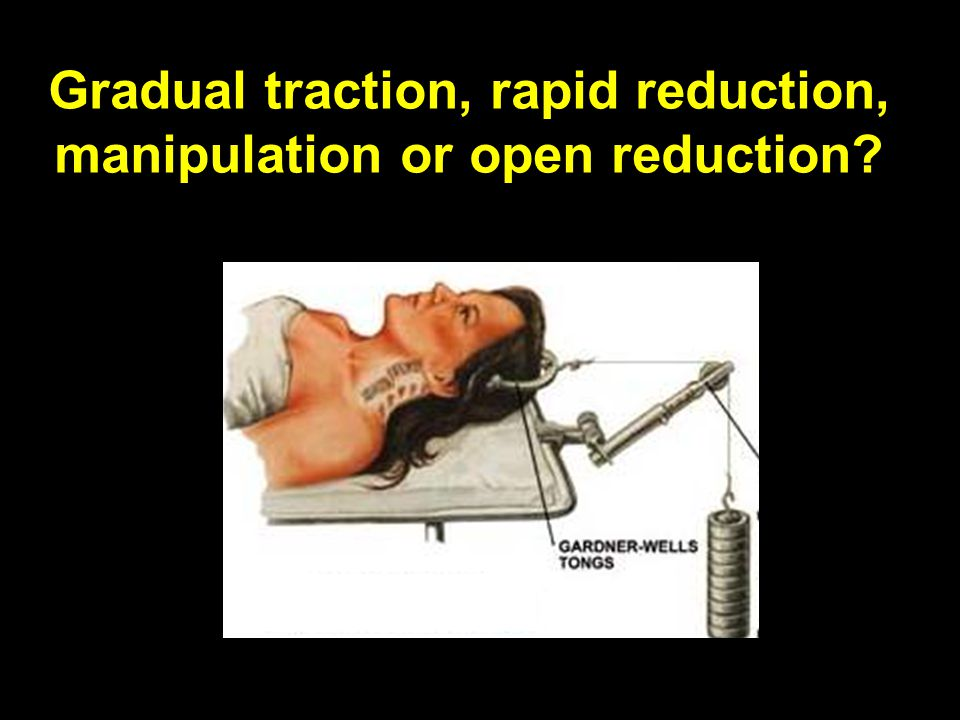 Gradual traction, rapid reduction, manipulation or open reduction?