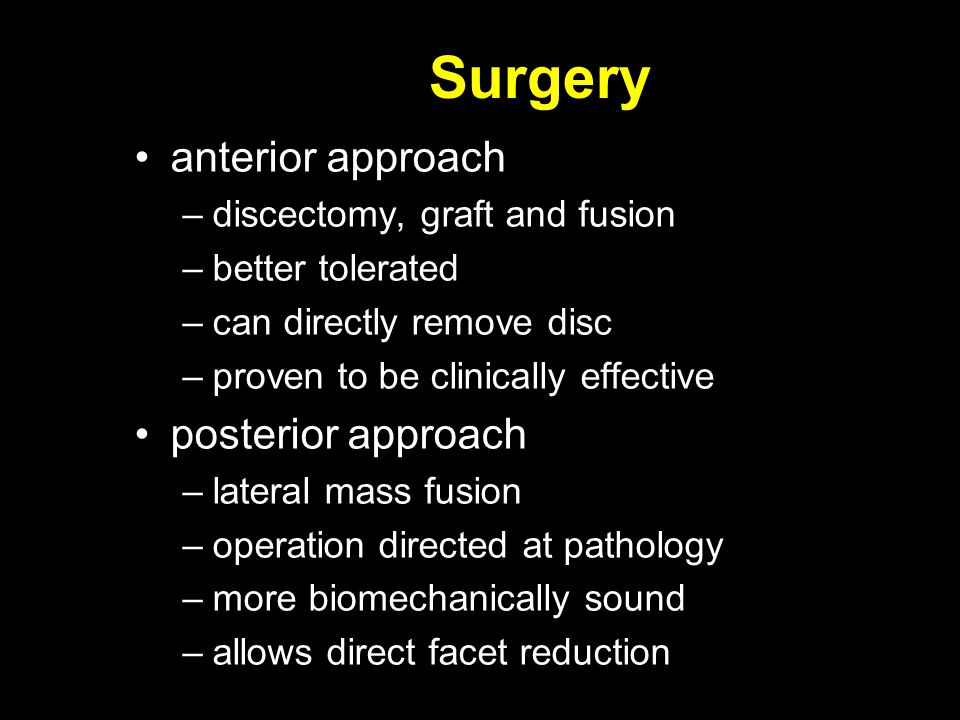 anterior approach –discectomy, graft and fusion –better tolerated –can directly remove disc –proven to be clinically effective posterior approach –lat