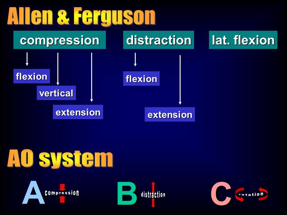 compressiondistraction lat. flexion flexion extension flexion vertical extension A A C C B B