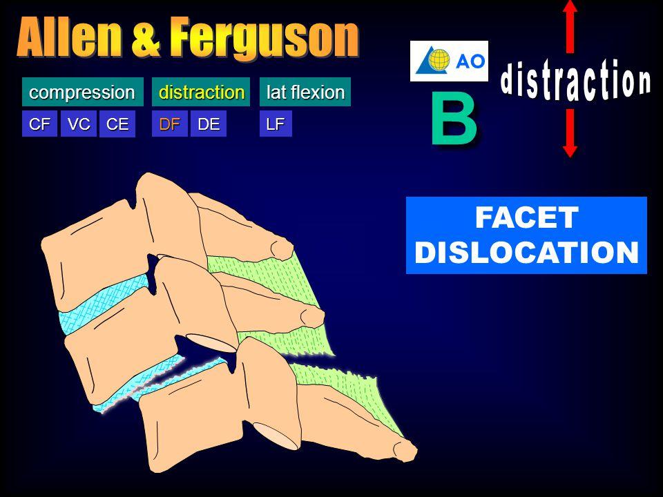 DF DE CF VC CE LFcompressiondistraction lat flexion DFdistraction AO B B FACET DISLOCATION