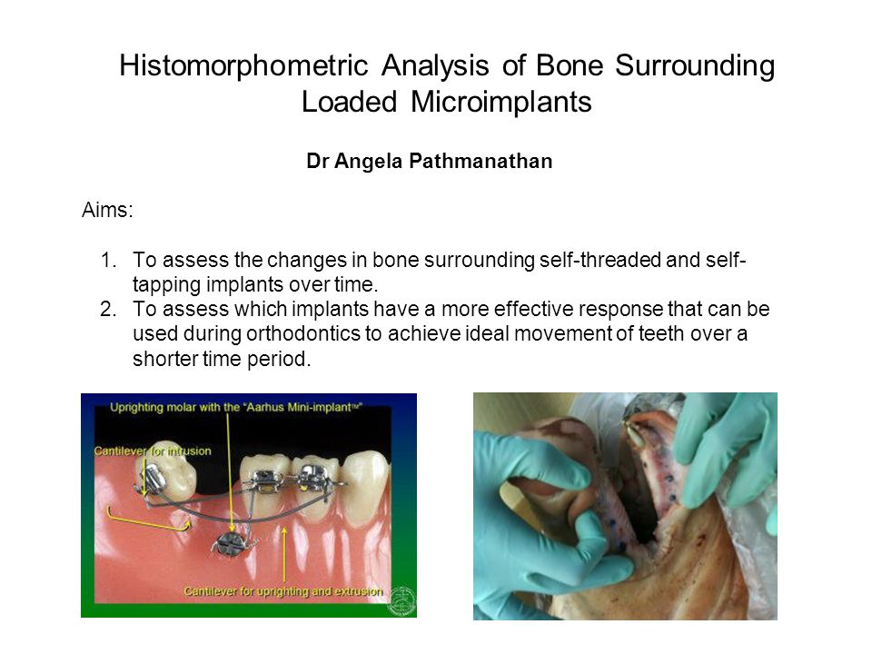 Histomorphometric Analysis of Bone Surrounding Loaded Microimplants Dr Angela Pathmanathan Aims: 1.To assess the changes in bone surrounding self-thre