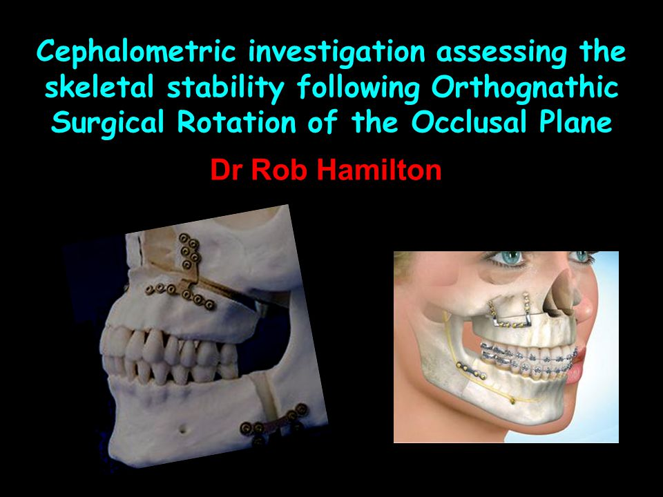 Cephalometric investigation assessing the skeletal stability following Orthognathic Surgical Rotation of the Occlusal Plane Dr Rob Hamilton
