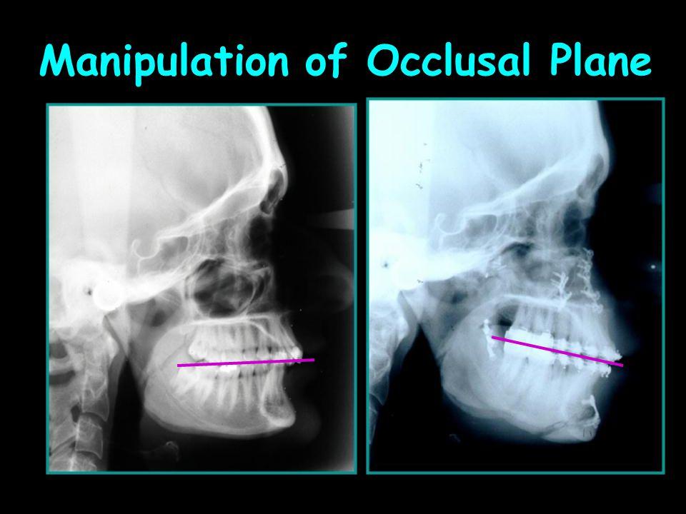 Manipulation of Occlusal Plane