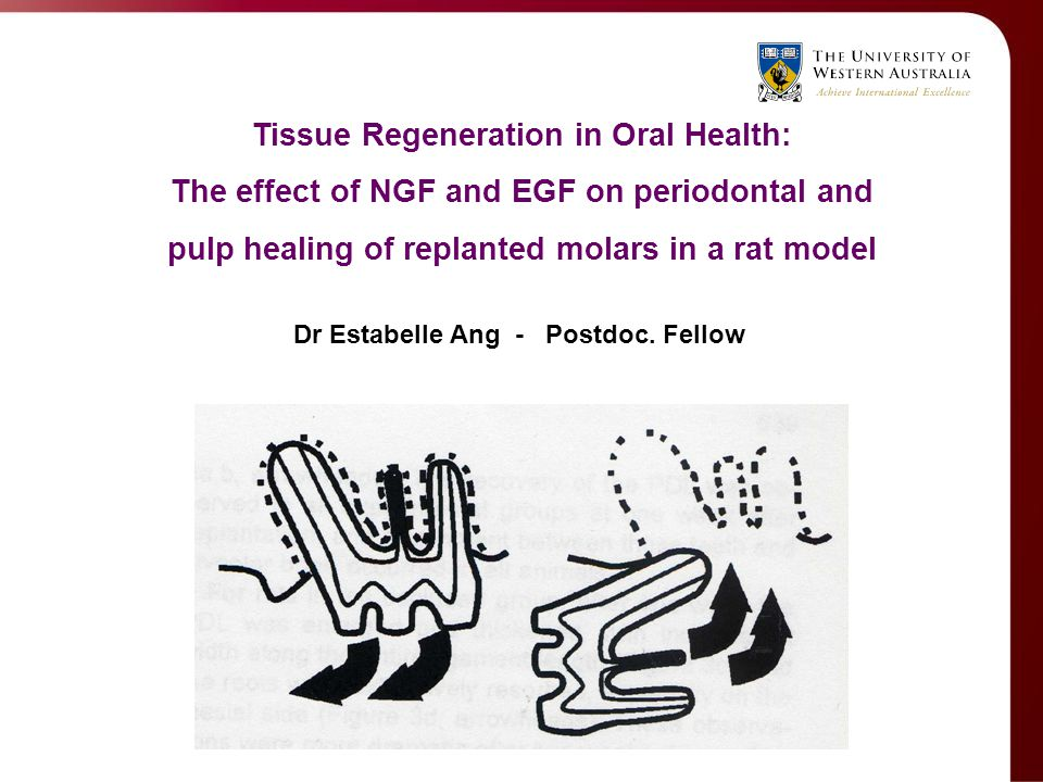 Tissue Regeneration in Oral Health: The effect of NGF and EGF on periodontal and pulp healing of replanted molars in a rat model Dr Estabelle Ang - Po