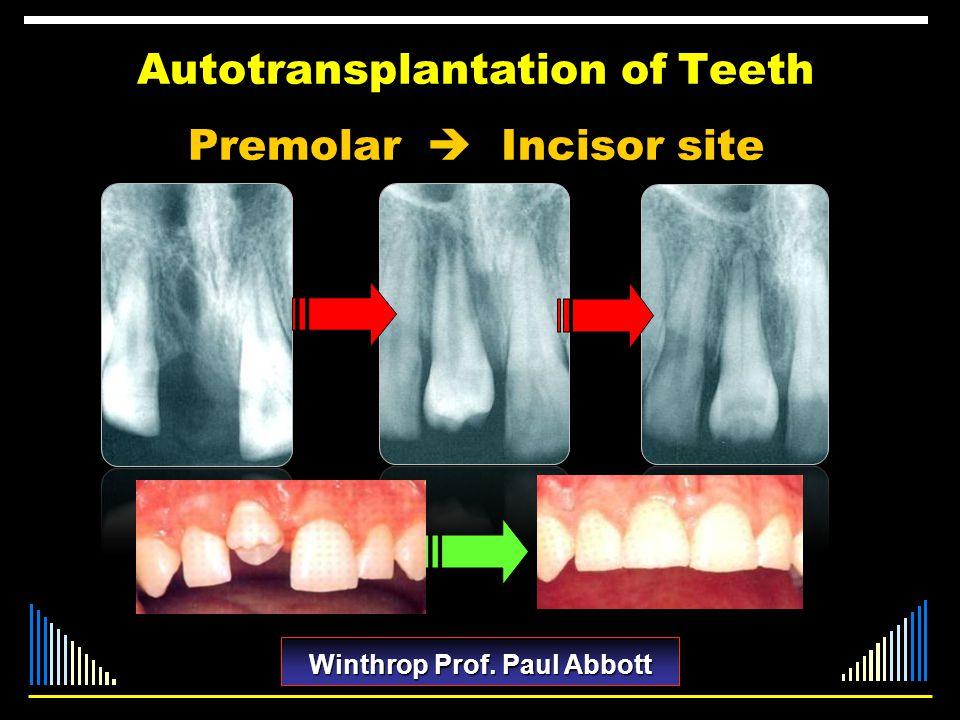Autotransplantation of Teeth Premolar Incisor site Winthrop Prof. Paul Abbott