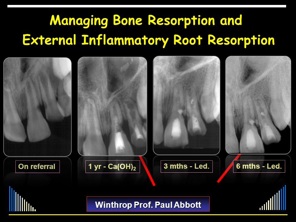 Managing Bone Resorption and External Inflammatory Root Resorption Winthrop Prof. Paul Abbott On referral1 yr - Ca(OH) 2 3 mths - Led. 6 mths - Led.
