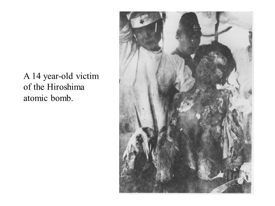 A 14 year-old victim of the Hiroshima atomic bomb.