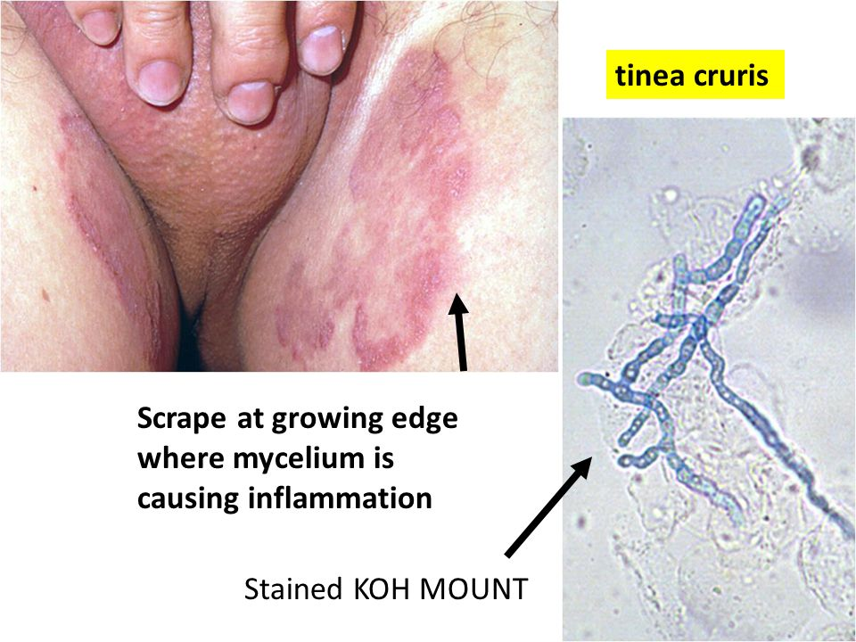 Scrape at growing edge where mycelium is causing inflammation Stained KOH MOUNT tinea cruris
