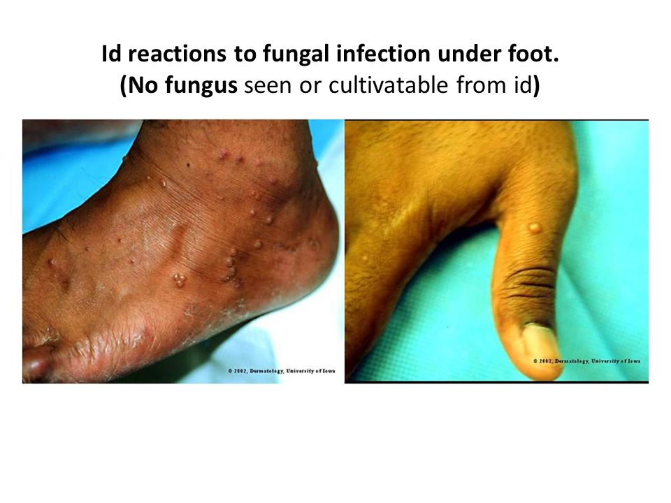 Id reactions to fungal infection under foot. (No fungus seen or cultivatable from id)