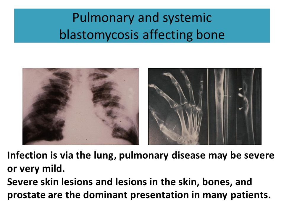 Pulmonary and systemic blastomycosis affecting bone Infection is via the lung, pulmonary disease may be severe or very mild. Severe skin lesions and l