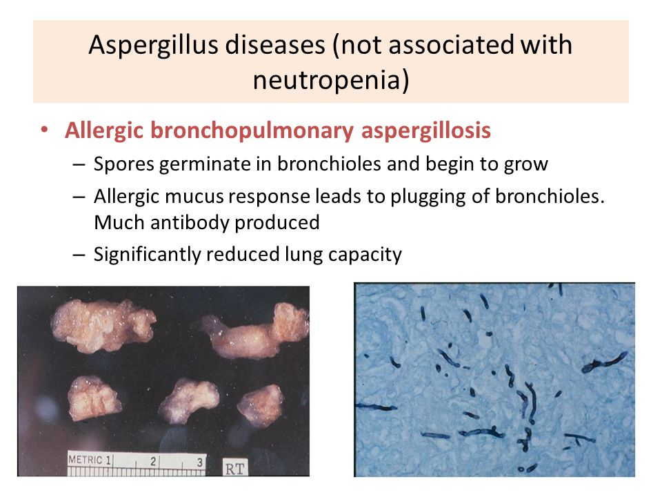74 Aspergillus diseases (not associated with neutropenia) Allergic bronchopulmonary aspergillosis – Spores germinate in bronchioles and begin to grow