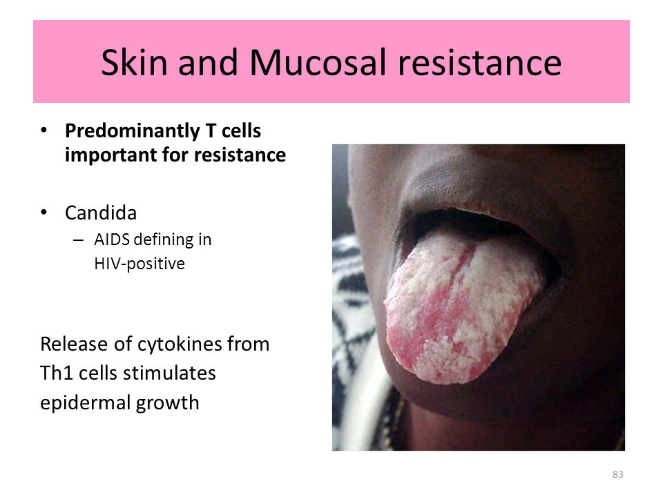 83 Skin and Mucosal resistance Predominantly T cells important for resistance Candida – AIDS defining in HIV-positive Release of cytokines from Th1 ce