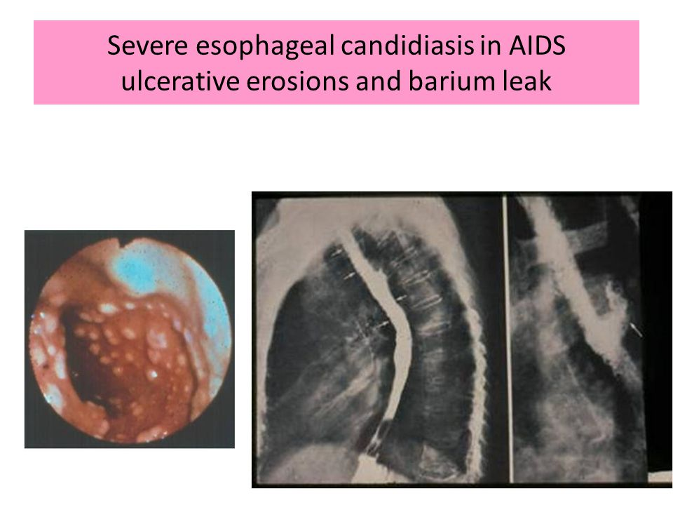 84 Severe esophageal candidiasis in AIDS ulcerative erosions and barium leak