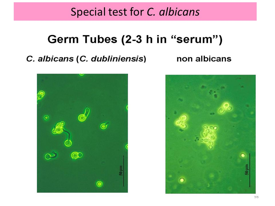 98 Special test for C. albicans