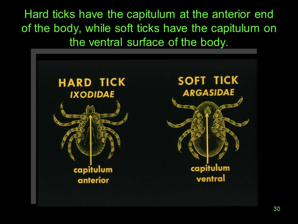 30 Hard ticks have the capitulum at the anterior end of the body, while soft ticks have the capitulum on the ventral surface of the body.