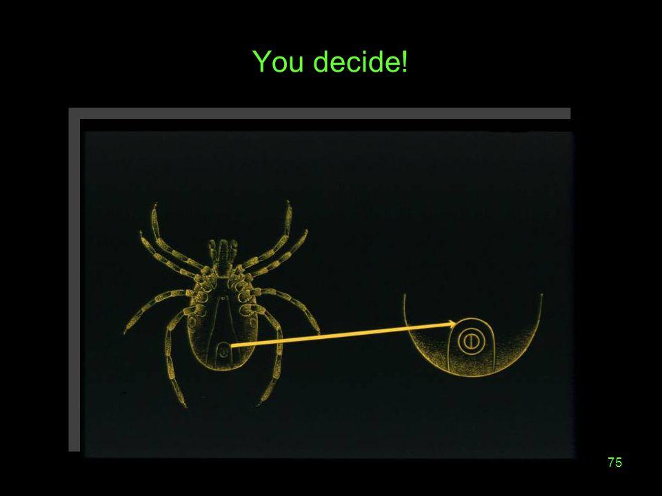 75 You decide!