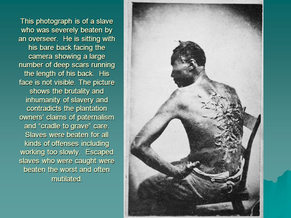 This photograph is of a slave who was severely beaten by an overseer. He is sitting with his bare back facing the camera showing a large number of dee