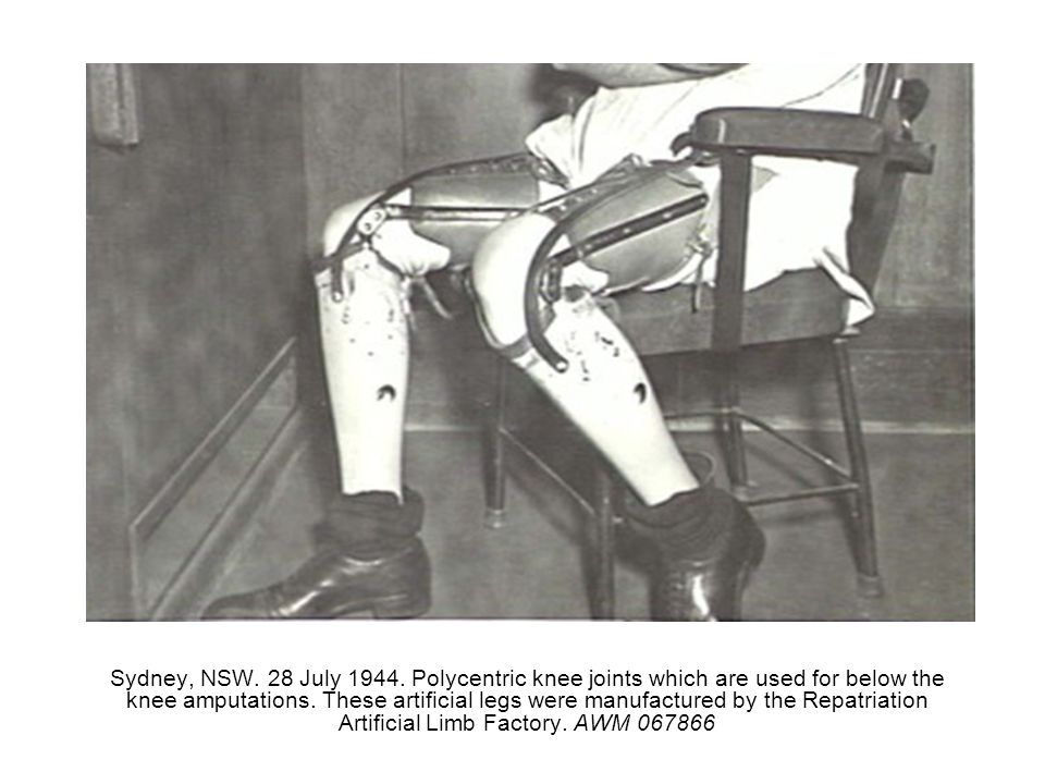Sydney, NSW. 28 July 1944. Polycentric knee joints which are used for below the knee amputations. These artificial legs were manufactured by the Repat