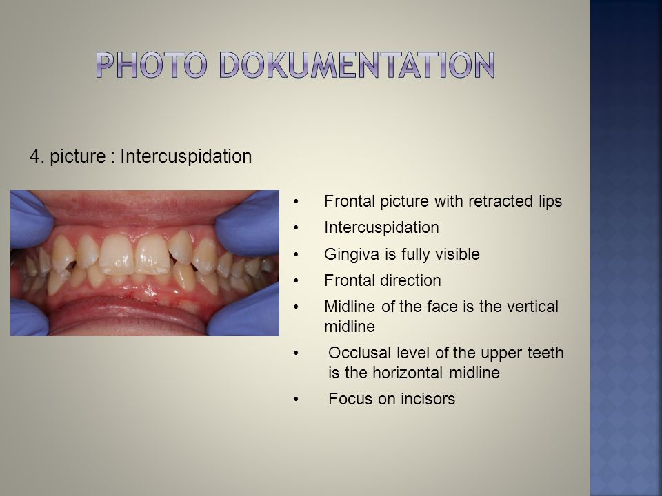 4. picture : Intercuspidation Frontal picture with retracted lips Intercuspidation Gingiva is fully visible Frontal direction Midline of the face is t